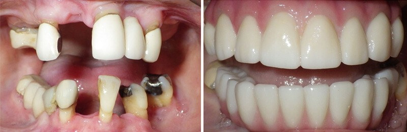 Before and After of All on 4 at Dr. Korwin, Red Bank NJ Middletown NJ Dentist