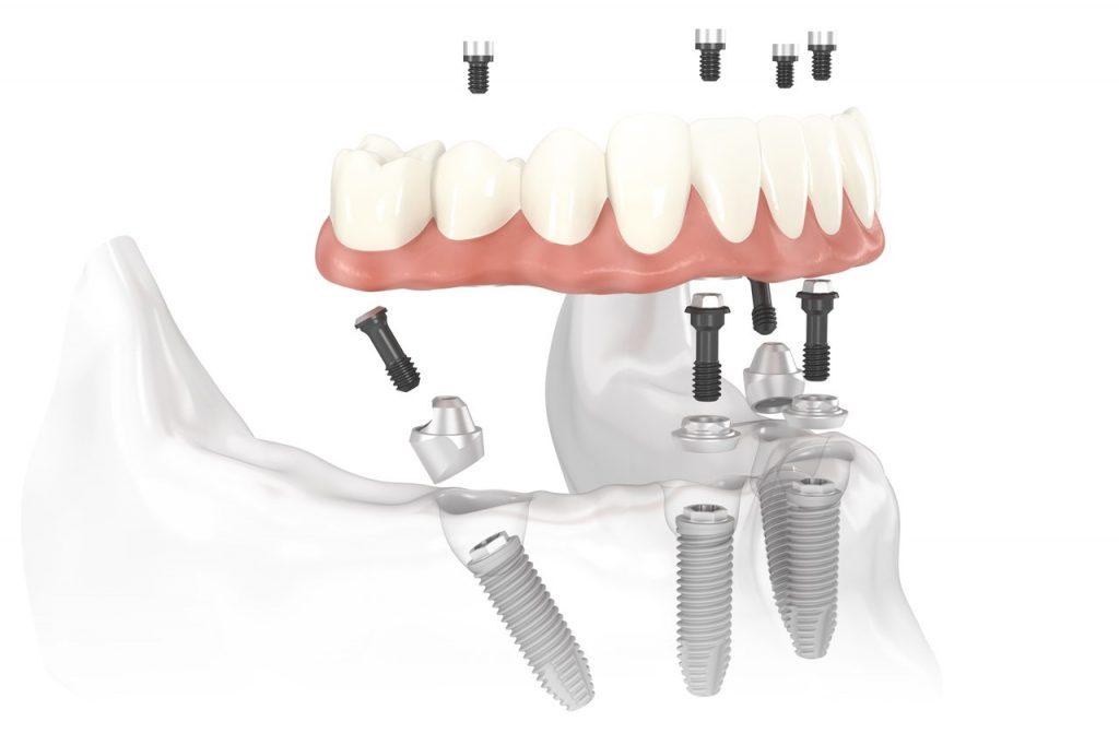 All-on-4 Dental Implants Dr. Korwin, Red Bank NJ Middletown NJ Dentist