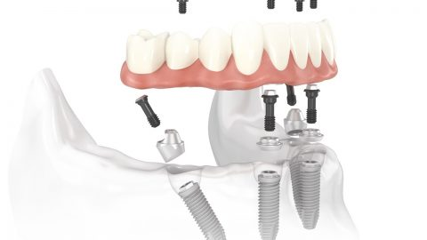 All-on-4 Dental Implants Dr. Korwin, Red Bank NJ Middletown NJ Dentist