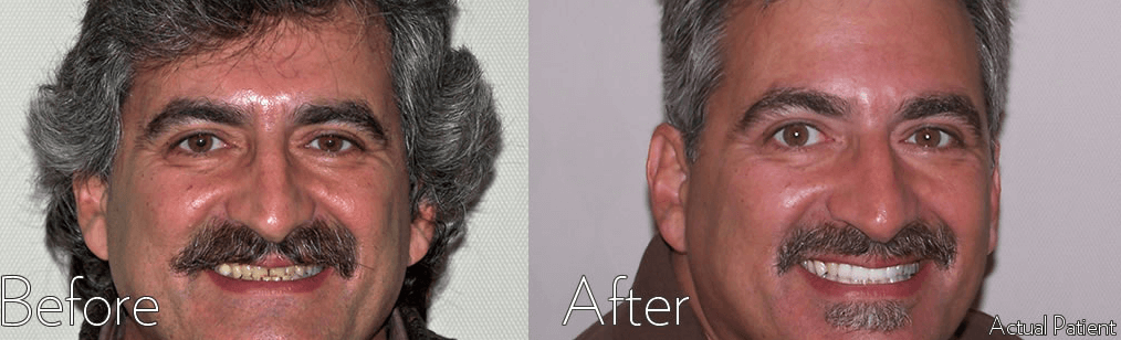 Cosmetic Dentistry Before and After Dr. Korwin, Red Bank NJ Middletown NJ Dentist
