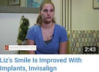 Smile Improved with Implants and Invisalign