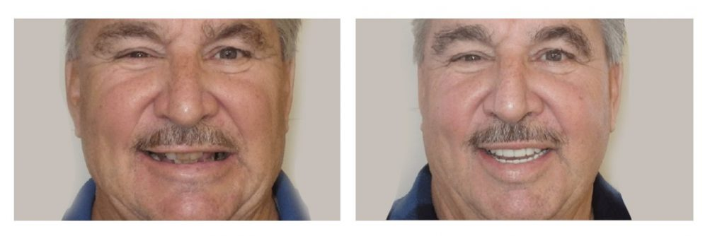 All-on-4 permanent dentures