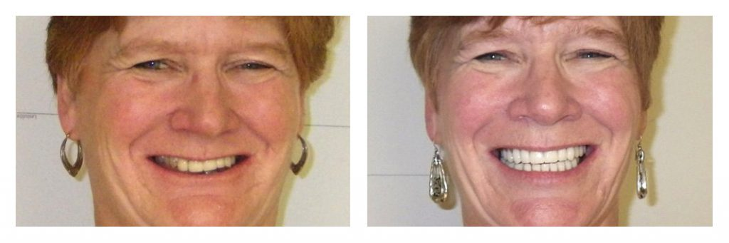 permanent-new-set-of-teeth3