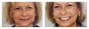 All-on-4 Dr. Korwin, Red Bank NJ Middletown NJ Dentist