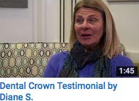 Dental Crown Testimonial