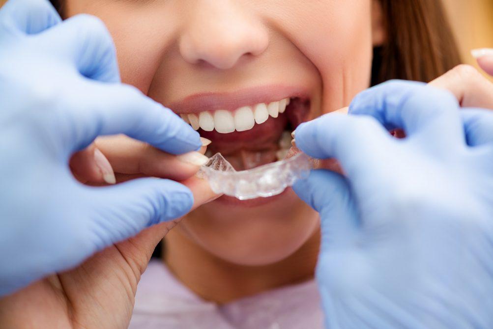 Invisalign Braces Dr. Korwin, Red Bank NJ Middletown NJ Dentist