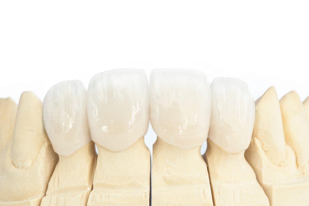 Ceramic crown for teeth