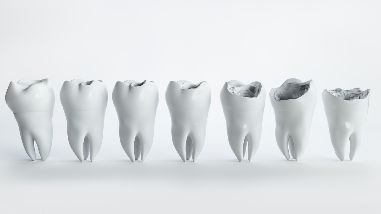 Stages of tooth decay Dr. Korwin, Red Bank NJ Middletown NJ Dentist