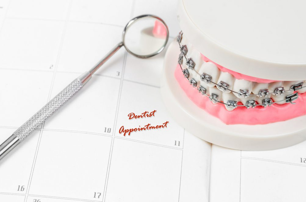 Tooth model with metal wire dental braces with dentist appointment on a calendar. Regular checkups are essential to oral health