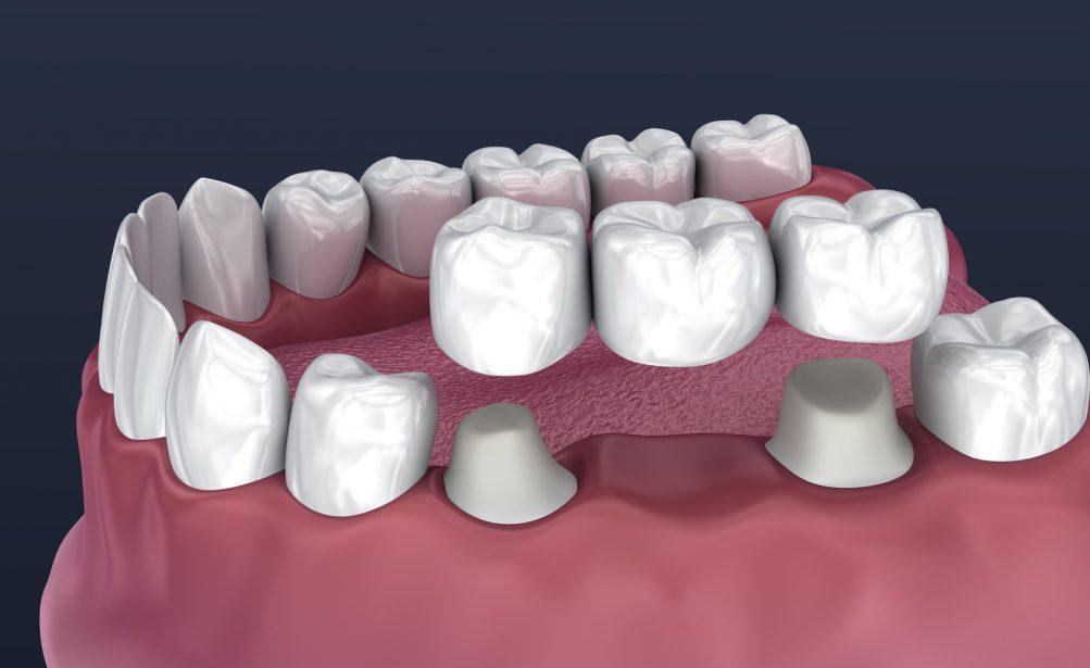 Fixed Bridges Dr. Korwin, Red Bank NJ Middletown NJ Dentist