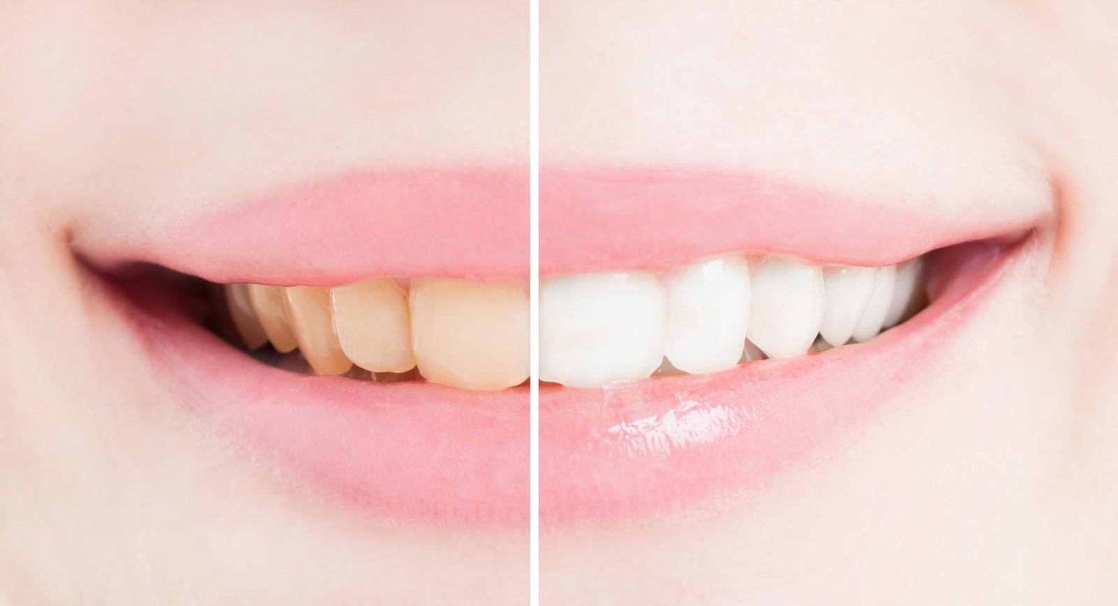 Teeth Whitening Dr. Korwin, Red Bank NJ Middletown NJ Dentist