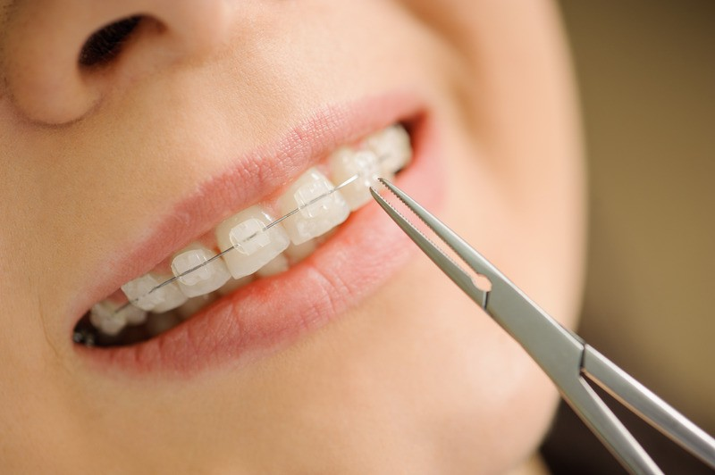 Close-up ceramic braces on teeth at the dental clinic. Dentist holding dental tool. Orthodontic Treatment.