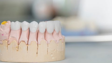 All-on-4 Dental Implants permanent dentures