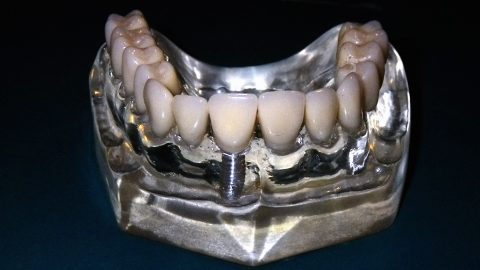 permanent-dentures