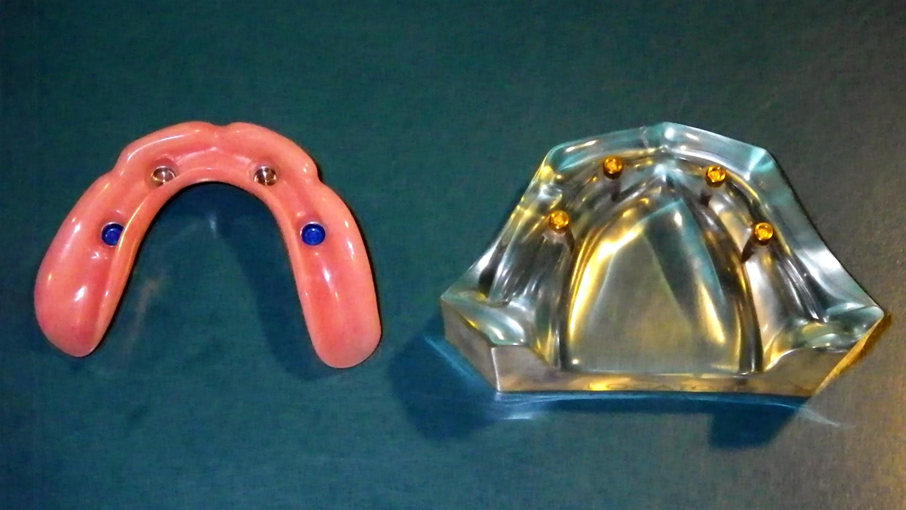 permanent-dentures-a
