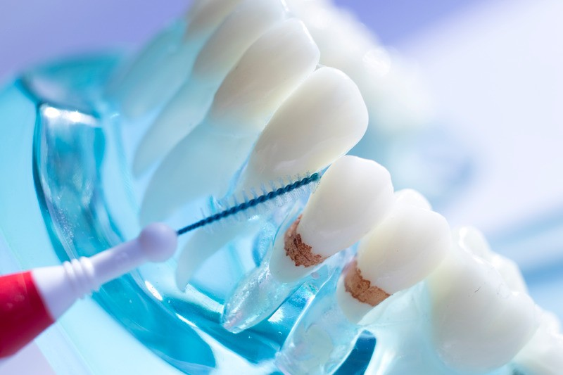 Inter dental teeth cleaning brush healthy floss action between each tooth to remove plaque.