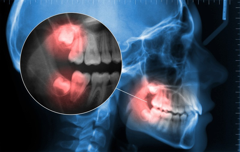 cephalometric and displaying toothache wisdom tooth