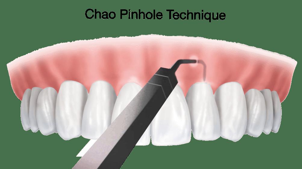 chao-pinhole