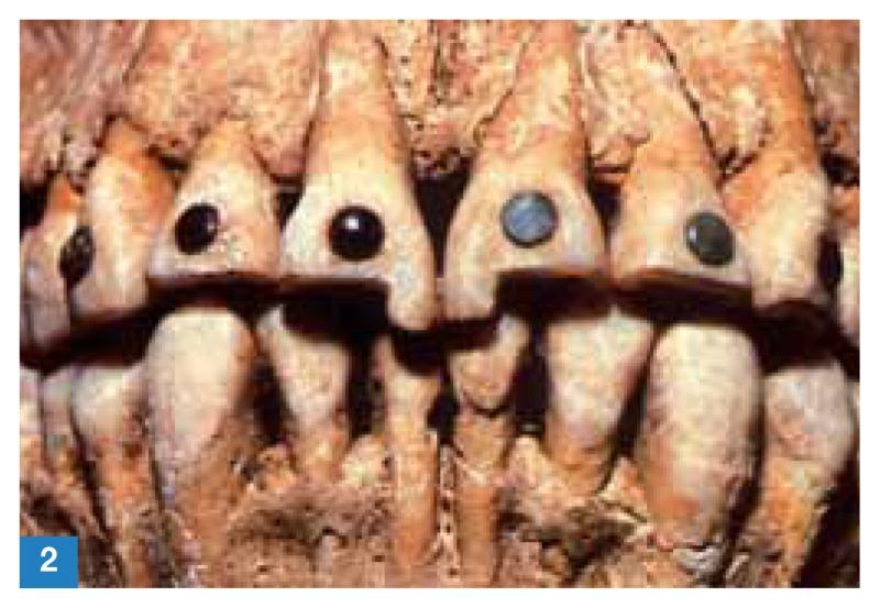 History Dentistry