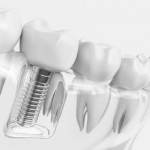Placement of implants Dr. Korwin, Red Bank NJ Middletown NJ Dentist
